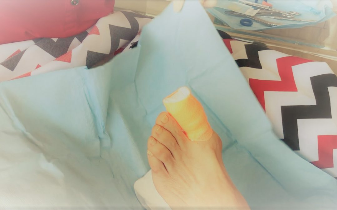My Mum had ingrowing toenail surgery!